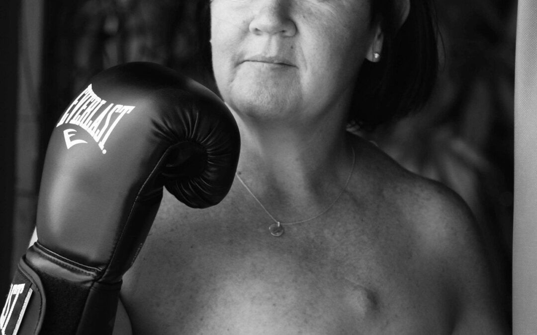#ScarsOfStrength – Tracey's Story